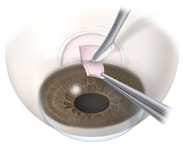 c50 trab scleral flap